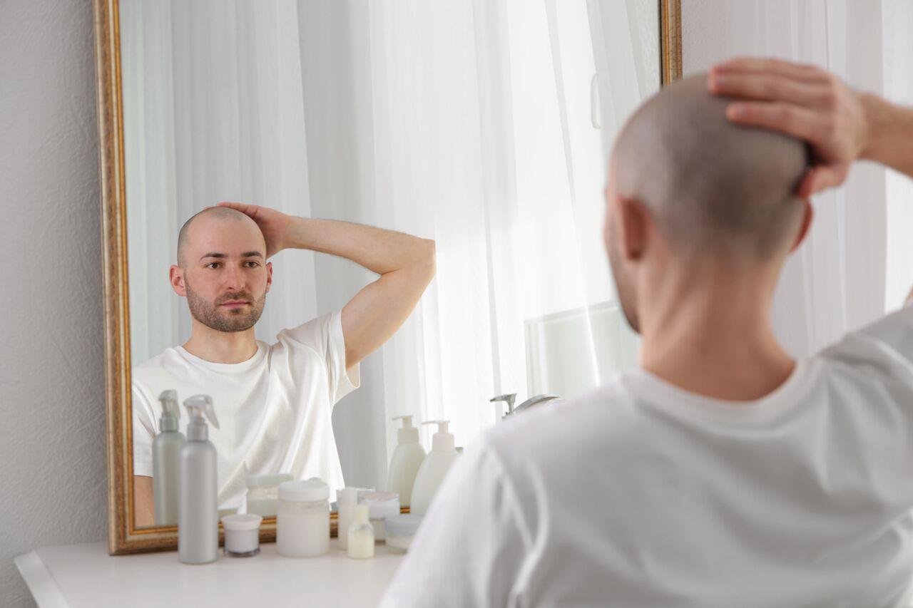 will TRT cause hair loss