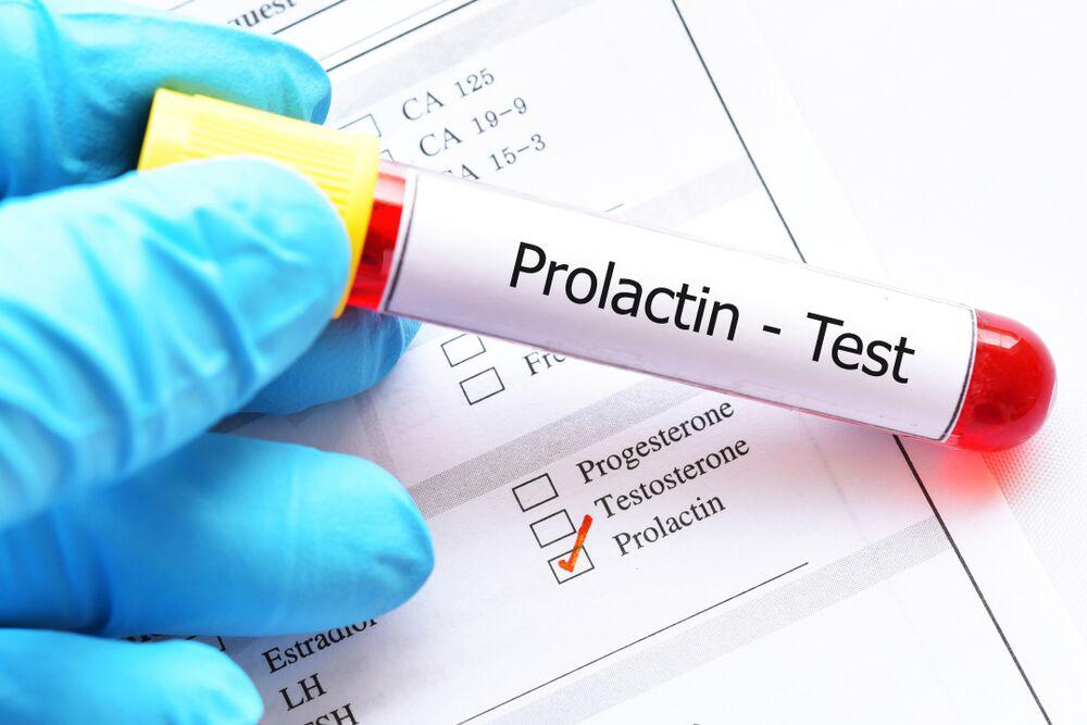 What is prolactin