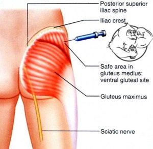 testosterone propionate injection in glutes