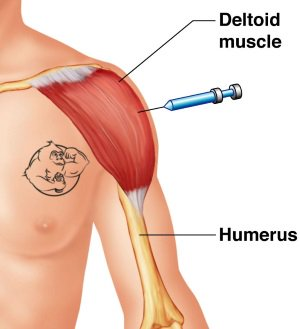 testosterone propionate deltoid shoulder injection