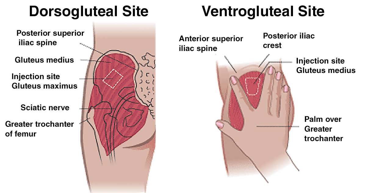 Ventrogluteal and Dorsogluteal IM Injection Site