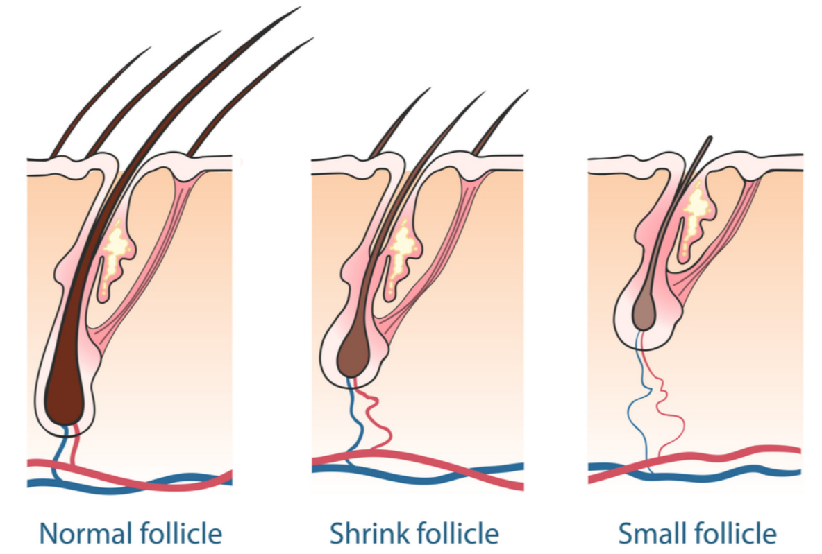 hair-loss-science