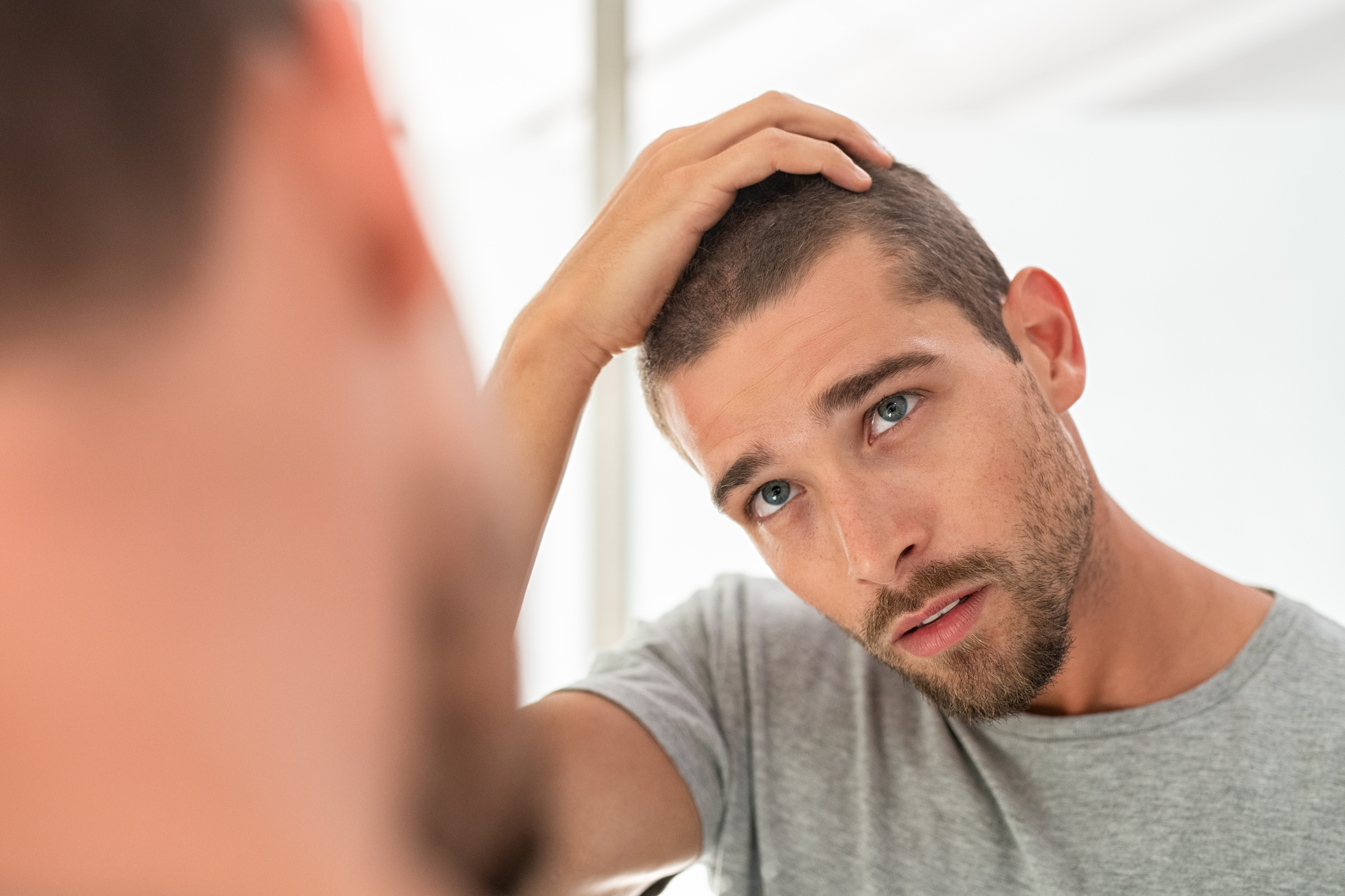 hair loss and TRT