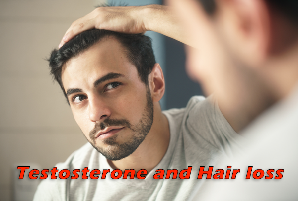 testosterone-trt-and-hair-loss